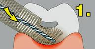 Как правильно чистить зубы ершиком
