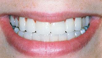 Виниры: красивая белоснежные зубы