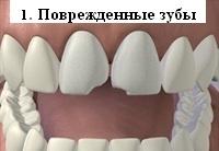 Поврежденные зубы перед установкой виниров