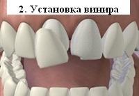 Установка виниров на поврежденные зубы