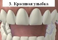 Красивая белоснежная улыбка после установки виниров