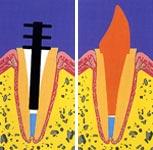 Восстановление коронковой части зуба. Крепление штифта в корне зуба