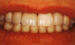 Восстановление коронковой части зуба. Зубы после реставрации