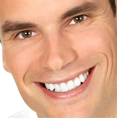 Виниры. Преображение улыбки с помощью установки виниров