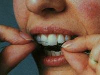 Чистим зубы с помощью флоссов. Как правильно?