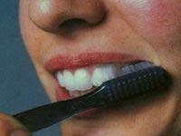 Методика чистки зубов. Щетка на десне